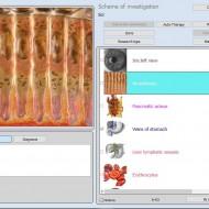 SNG-9D /9D-NLS aparat biorezonanta NLS, software in engleza si romana