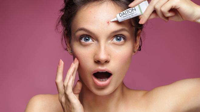 Ce este Acneea? cauze, tipuri, tratament și prevenire