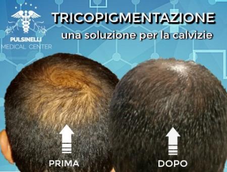 TRICOPIGMENTAZIONE PER RIDURRE LE TRASPARENZE DA DIRADAMENTO CAPELLI (SEDUTA DI TRE ORE)