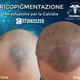 INFOLTIMENTO DEI CAPELLI CON TRICOPIGMENTAZIONE (SEDUTA DI 3 ORE)