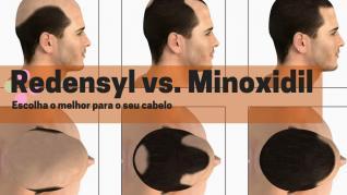 Redensyl Vs. Minoxidil - Escolha o melhor para o seu cabelo