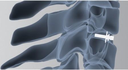 ARION, Cage Vertebral cervical expandabil