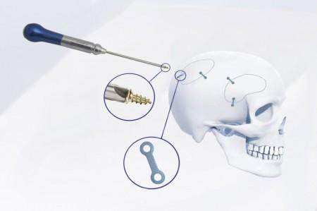 HERAKLES, Microplaci si Suruburi pentru fixarea craniana