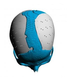 Placa (Cranioplastie), defecte craniene
