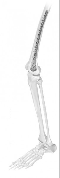 Placa de femur distal poliaxiala pentru osteosinteza fracturii de femur