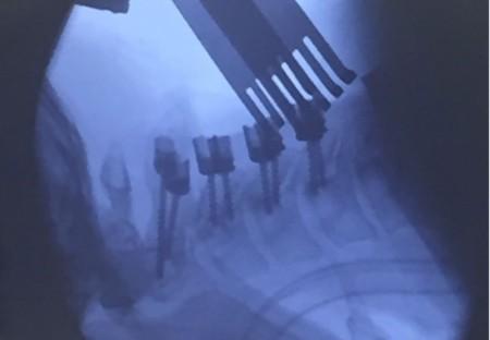 Sistem fixare posterior din Titan (suruburi poliaxiale, posterioare cervicale , AP Trauma si Oncologie / Tumori)