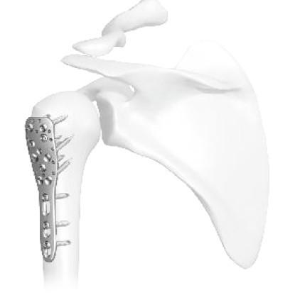 Placa Humerus Proximal poliaxiala pentru osteointeza fracturii de Humerus