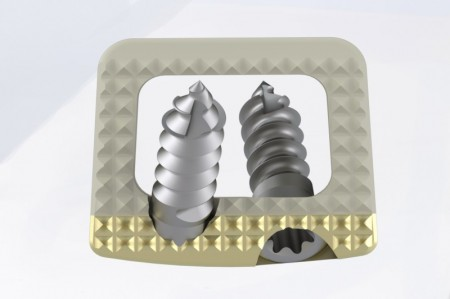TITANOPEEK - Cage Vertebral Cervical cu suruburi de prindere si profil anatomic