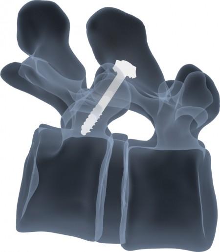 PALES, Sistem suruburi multiaxiale pentru artrodeza