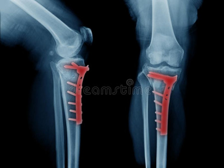 Placa de tibie proximala in T poliaxiala pentru osteosinteza fracturii de tibie Enlife