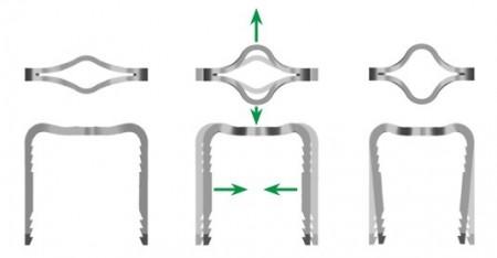 Uni-Clip, scoaba de compresie