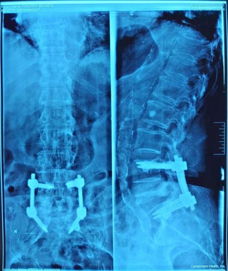 Vesta, Surub din Titan, fenestrat (Osteoporoza,  AP Trauma si Oncologie)