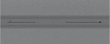 APERIO si APERIO HIBRID, Stent Trombectomie Mecanica ( pentru eliminarea cheagurilor, trombilor din sange)