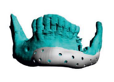 Implant mandibula Titan PSI Enlife Solutions
