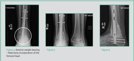 PANTA si PANTA XL, tija pentru artrodeza piciorului/ gleznei