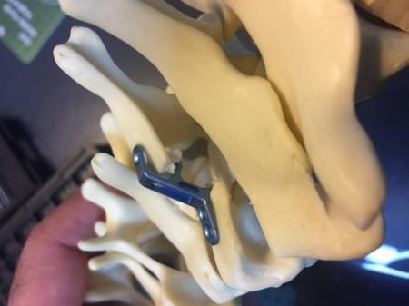 ULITO, Placa Cervicala laminoplastie