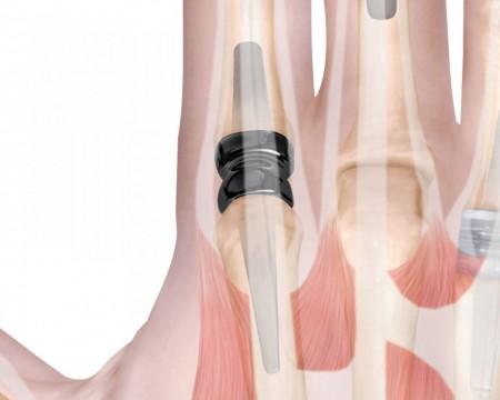 MCP, Implant meta-carpo-falangian din PyroCarbon