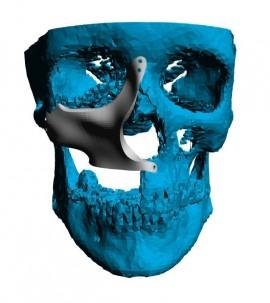 Placa (Cranioplastie), defecte ORL