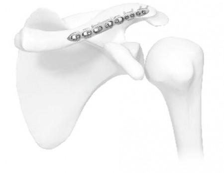 Placa in S poliaxiala pentru osteointeza fracturii de clavicula