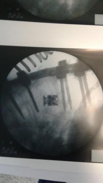 X si XP , cage corpectomie din Titan ( AP Trauma si Oncologie / Tumori)