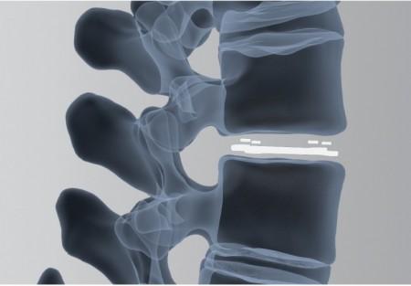 ARIA, Cage vertebral expandabil din PEEK