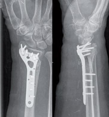 Placa de Radius Distal poliaxiala pentru osteointeza fracturii de radius