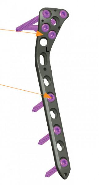 Placa de tibie proximala poliaxiala pentru osteosinteza fracturii de tibie Enlife