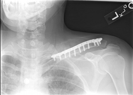 Placa cu extremitate laterala poliaxiala pentru osteointeza fracturii de clavicula