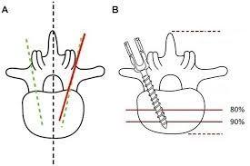 Sistem fixare coloana ( format din bare  Ti/ CoCr si surubruburi )