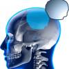 Cranos proteza specifica pacientului Enlife