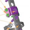Sistem de Cerclaj Sirtalis pentru fracturile periprotetice