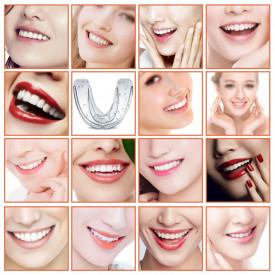 Aparat ortodontic mobil tip gutiera din silicon semi dur, pentru copii si adulti, MyStyle® trainer