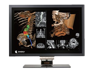 Slika CW 60 Wide Medicinski monitor