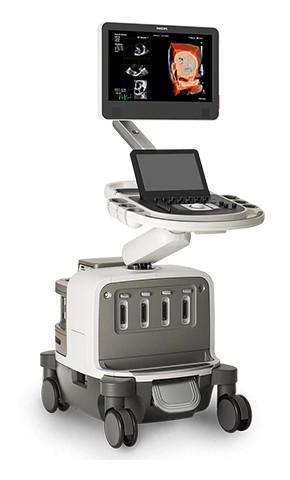 Philips EPIQ CVx*: Exceptional cardiac ultrasound