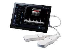 Slika U prodaji Alpinion Mini Sono portabl ultrazvuk, odlican model za vasu ordinaciju