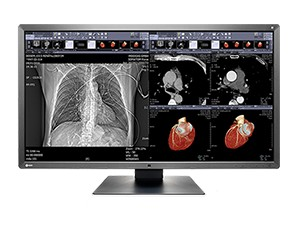 Slika MX315 W medicinski monitor