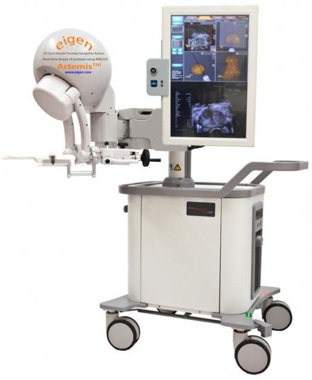 Slika ARTEMIS 3D Imaging and Navigation for Prostate Biopsy
