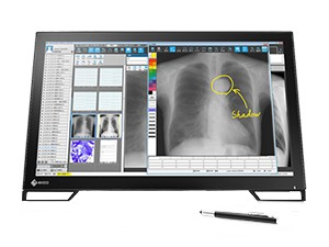 Slika MS236 MT Medicinski monitor