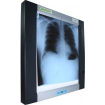Daray Single Panel X-Ray Viewer