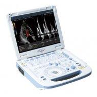 Fokuda portabilni ultrazvuk-超音波画像診断装置 UF-760AG+ PaoLus+