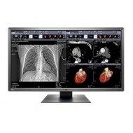 MX315 W medicinski monitor