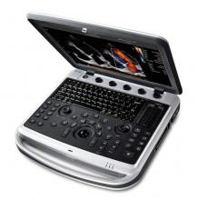 Chison Sonobook9 portable ultrasound machine