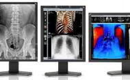 "NEC 21"" Color Medical Diagnostic Monitors with MDA-W5000 Graphics Card"