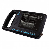 Ultrasound Machine | WD-300 Kardiologija ultrazvuk