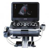 ALPINION Ecube i7 Portabilni ultrazvucni aparat