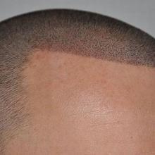 tatuaj scalp