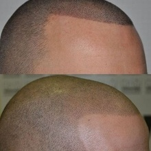 pigmentare scalp