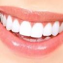 Sbiancamento Dentale Professionale (Sessione 15/20 min)